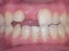 οδοντικά ορθοδοντικά προβλήματα 1