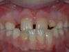 οδοντικά ορθοδοντικά προβλήματα 2