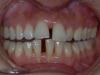 οδοντικά ορθοδοντικά προβλήματα 3