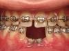 οδοντικά ορθοδοντικά προβλήματα 4