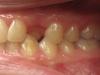 οδοντικά ορθοδοντικά προβλήματα 5