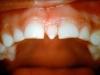 οδοντικά ορθοδοντικά προβλήματα 8