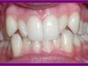 οδοντικά ορθοδοντικά προβλήματα 10