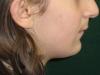 σκελετικά ορθοδοντικά προβλήματα 9