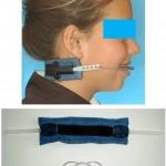 σιδεράκια - κινητή εξωστοματική συσκευή